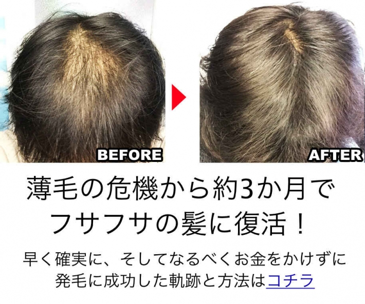 薄毛の危機から3ヶ月で復活