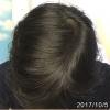 しばらくフィンペシアを控えたらヤバイことに。そして現在の毛髪の状況は?